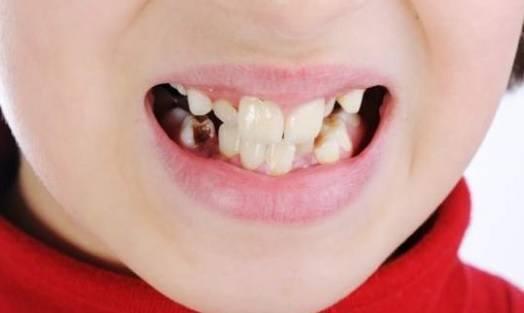 Profilaktyka próchnicy zębów u dzieci w wieku przedszkolnym
